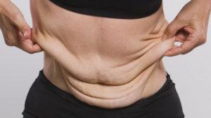 Excesso de pele após grande perda de peso pode ser resolvido com cirurgia plástica (Foto: Reprodução de Internet)