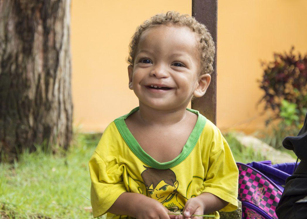 Crianças que passam pela cirurgia para corrigir a deformação têm depois uma vida normal (Foto: Divulgação)