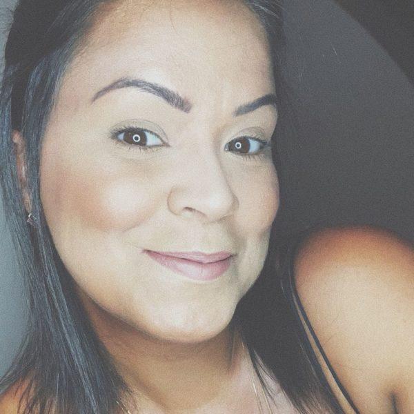 Anna conta que no começo a maquiagem a ajudava a esconder as cicatrizes, pois sentia vergonha (Foto: Álbum, de Família)